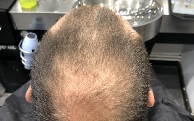 Are you suffering from thinning hair?