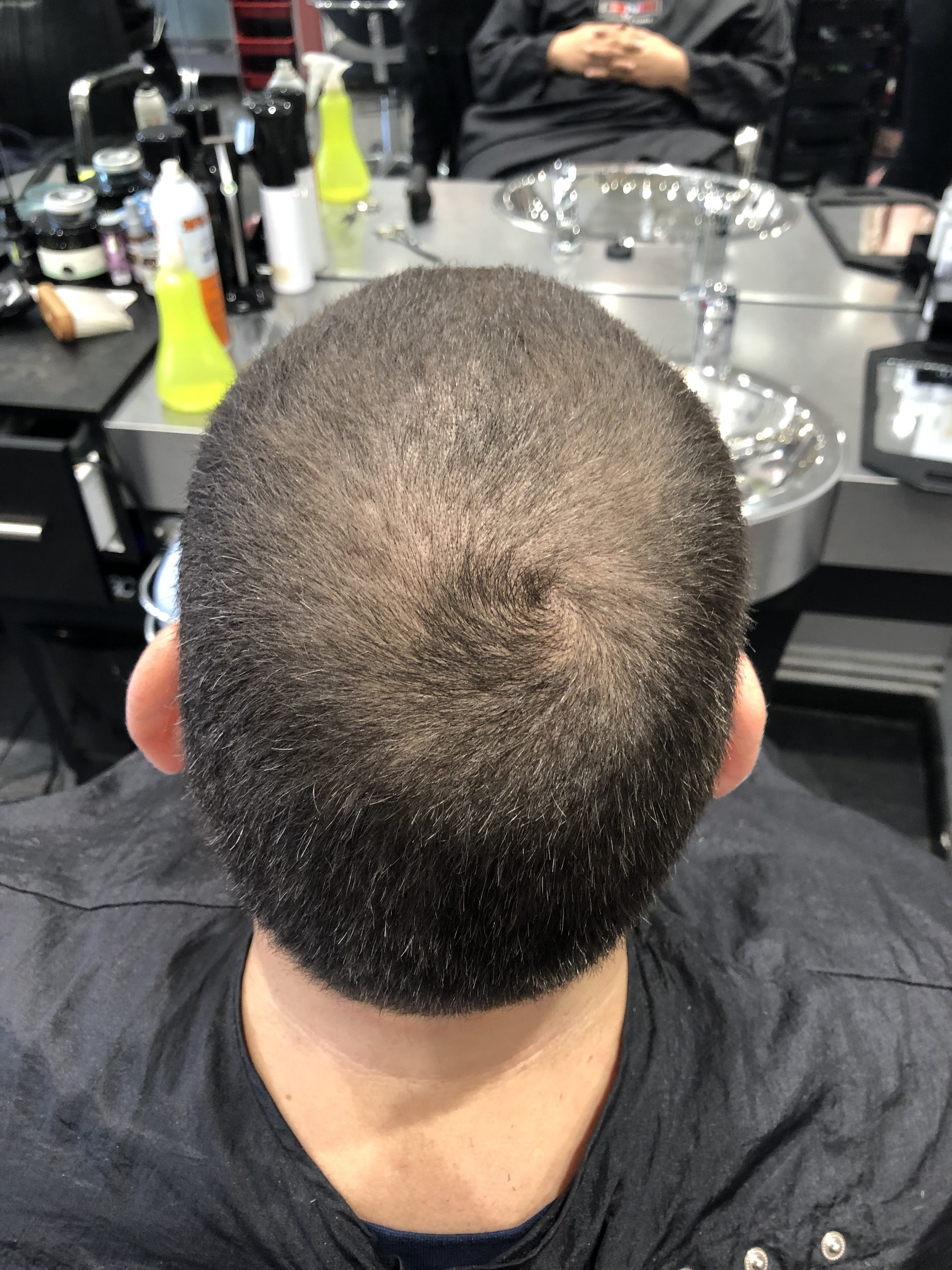 Are you suffering from thinning hair? - Iconic